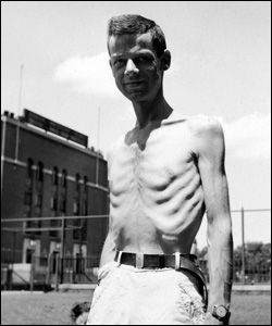 A participant of the Minnesota Starvation Experiment.